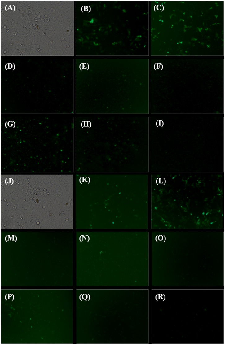 Fluorescence microscopic imaging of pEGFP-C3 transfected HeLa cells. Cells were transfected of 50% FBS: (A–I) −FBS+FBS and (J–R) +FBS+FBS. Cells were treated with (A and J) Cells only; (B and K) Effectene using manufacturers protocol; (C and L) CholHG-1ox, N/P ratio 0.5; (D and M) CholHG-2ox, N/P ratio 0.5; (E and N) CholHG-3ox, N/P ratio 0.75; (F and O) CholHG-4ox, N/P ratio 0.75; (G and P) CholG-D, N/P ratio 1; (H and Q) CholHG-D, N/P ratio 1 and (I and R) Chol-M, N/P ratio 4. Plasmid DNA pEGFP-C3, 0.8 µg was used in study.