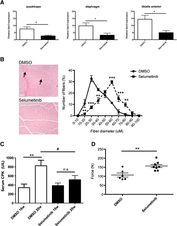 Selumetinib from 16 to 20 weeks of age improves skeletal muscle pathology and function in Lmna H222P/H222P mice. ( A ) Expression of Myh3 in Lmna H222P/H222P mice measured using real-time quantitative RT-PCR. White bars show relative RNA expression levels in skeletal muscles of DMSO-treated (white bars) and selumetinib-treated (black bars) mice. Values are means ± SEM for n = 5 mice per group; the real time RT-PCR was performed in triplicate with the different RNA sample; * P