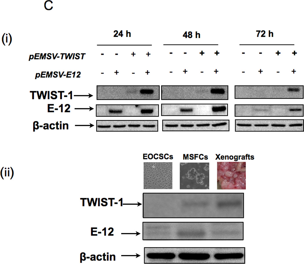 TWIST-1 expression during EMT ( A Immunofluorescence show specific expression of TWIST-1 only in cells undergoing EMT; (i) CD44+/MyD88+ EOC stem cell monolayer is negative for TWIST-1; (ii) TWIST-1 is expressed in cells with fibroblast/mesenchymal morphology; (iii) TWIST-1 is highly expressed in cells forming spheroids; (iv) Western blot analysis showing TWIST-1 expression is mainly nuclear. EOCSC - CD44+/MyD88+ EOC stem cells; MSFC - mesenchymal-like spheroid forming cells. ( B (i) Transfection of pEMSV- TWIST1 into CD44+/MyD88+ EOC stem cells is not able to induce expression of TWIST-1 protein; (ii-iii) the proteasome inhibitor, MG132 is able to increase endogenous and ectopically expressed TWIST-1. ( C (i) Co-transfection of E12 and TWIST-1 significantly increased TWIST-1 expression in the CD44+/MyD88+ EOC stem cells; ii) parallel increase in E12 and TWIST-1 was observed in the MSFCs and in mouse xenograft. EOCSC - CD44+/MyD88+ EOC stem cells; MSFCs - mesenchymal spheroids forming cells.