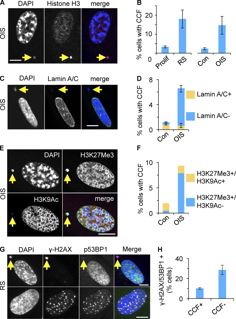 Cytoplasmic chromatin fragments in senescent cells. (A) Cytoplasmic chromatin fragments (CCFs) in senescent cells are strongly positive for histone H3. Yellow arrow marks CCF. (B) Increased proportion of cells with CCFs in RS or OIS. Mean ± SEM, n = 3; P