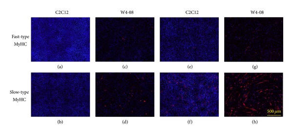 Myosin heavy chain (MyHC) expression in parental C2C12 cells and C2C12-derived cells permanently expressing Wnt4. Parental C2C12 cells (a, b, e, and f) and W4-08 cells (c, d, g, and h) were cultured for 2 days in proliferation medium containing 10% fetal bovine serum (a–d), or in differentiation medium containing 2% horse serum (e–h), and then immunohistochemically stained with anti-MyHC antibodies, followed by counterstaining with DAPI. Spontaneous expression of slow-type MyHC was evident in W4-08 cells in proliferation medium and intensified in differentiation medium, although the proliferation rates were greatly reduced compared to those of the parental C2C12 cells, as observed in the reduced number of nuclei (blue).