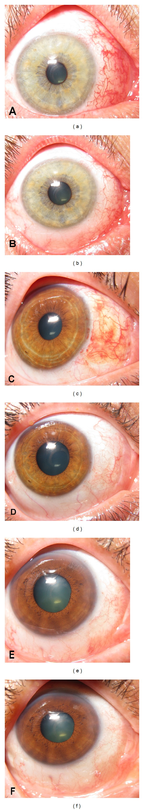 Photographs show area of conjunctival graft implantation after primary pterygium surgery in fluorometholone group at postoperative 2 weeks (a) and 1 month (b), in dexamethasone group at postoperative 2 weeks (c) and 1 month (d), and in the fluorometholone/tetrahydrozoline group at postoperative 2 weeks (e) and 1 month (f).
