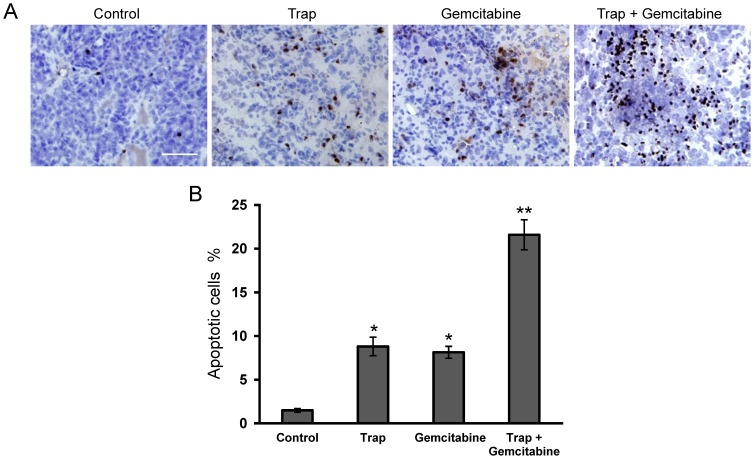 """Effect of VEGF-Trap combined with gemcitabine on cell apoptosis within tumors. ( A ) Cell apoptosis was evaluated by TUNEL staining, the representative sections of LLC tumor tissues were obtained from mice on day 15 after treatment initiation; ( B ) The apoptotic index was determined as described in """"Materials and methods"""". * P"""