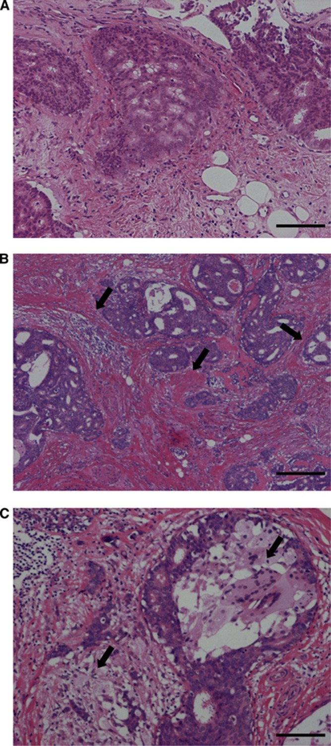 Morphological features of DCIS at baseline ( A ) and corresponding post-treatment ( B , C ) (Case 1). Increased periductal fibrosis ( B ) and infiltration of foam cells ( C ) were observed after the letrozole treatment as shown by arrows. Hematoxylin and eosin (HE) staining. Bar=100 μm, respectively. A full colour version of this figure is available at the British Journal of Cancer journal online.