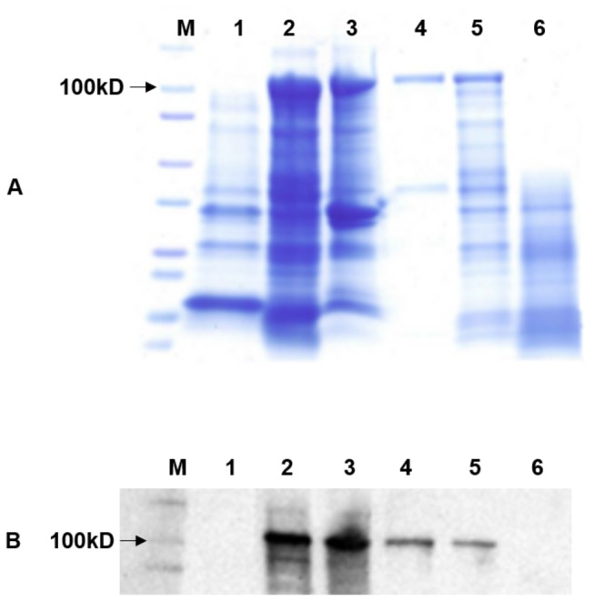 Expression and outer membrane localization of a novel autotransporter protein, LasA I , of ' Candidatus Liberibacter asiaticus' (Las). SDS-PAGE ( A ) and Western blot ( B ) analysis of E. coli containing the pET102- lasA I construct. M: A molecular mass marker; lane 1: Whole-cell lysate from E. coli BL21 containing plasmid pET102 alone; lane 2: Whole-cell lysate from E. coli BL21 containing recombinant plasmid pET102- lasA I, lane 3: outer membrane protein, lane 4: purified LasA I from whole-cell pellet, lane 5: LasA I protein without proteinase K treatment, Lane 6: LasA I with proteinase K treatment.