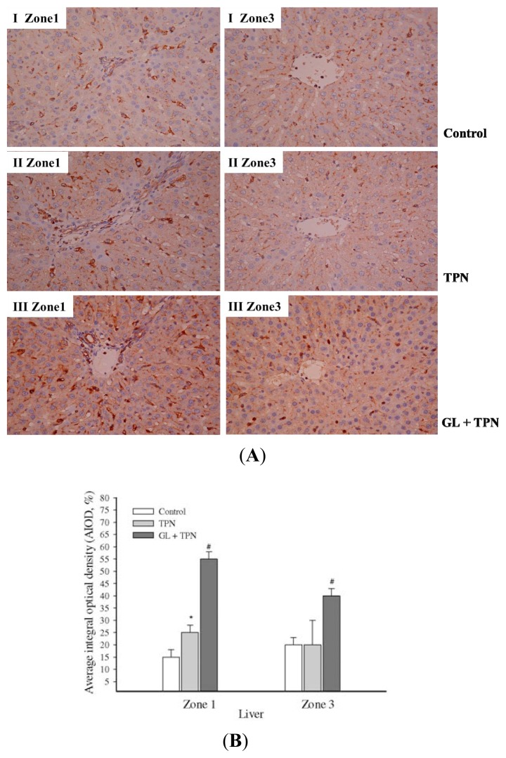 The effect of glycyrrhizin (GL) on liver cytokine-inducible SOCS3 protein levels. ( A ) Immunohistochemical staining for SOCS3 in rat livers was analyzed in different liver zonal areas: control rats (I); rats with TPN infusion (II); GL-pretreated rats (10 mg/kg) (III) staining of the portal and terminal hepatic venues zones; ( B ) The quantitation of immunohistochemical staining of SOCS3 levels by average integrated optical density (AIOD). The positive stained area was evaluated from three randomly selected observation fields of each liver section. The data represent the mean ± SD ( n = 6/group). * p