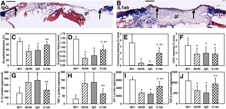 IL-1β–neutralizing antibody improves healing of wounds in diabetic mice. Images showing cryosections stained with trichrome for ( A ) control IgG-treated and ( B ) IL-1β–neutralizing antibody–treated wounds on day 10 postinjury. Note the increased re-epithelialization and granulation tissue in the IL-1β antibody (IL1ab)–treated wounds. Scale bar = 0.5 mm. Arrows indicate ends of migrating epithelial tongues. gt, granulation tissue; mm, deep muscle. The muscle layer observed underneath the wound in some sections is likely a part of the deep tissue collected that helps to maintain the integrity of the fragile wounds, particularly in untreated and IgG-treated diabetic mice. For wounds in db/+, untreated db/db, IgG-treated db/db, and IL1ab-treated db/db mice on day 10 postinjury, quantification of ( C , D ) re-epithelialization and granulation tissue thickness measured in hematoxylin and eosin–stained cryosections, ( E ) trichrome staining measured as percent area stained blue for collagen, and ( F ) CD31 staining measured as percent area stained for this endothelial cell marker. In addition, wounds from each group of mice were homogenized and levels of ( G–J ) IL-1β, TNF-α, IGF-1, and TGF-β measured using ELISA. For all graphs, bars = mean ± SD, n = 6–8. *Mean value significantly different from that for wounds in db/+ mice. **Mean value significantly different from that for control IgG-treated wounds.