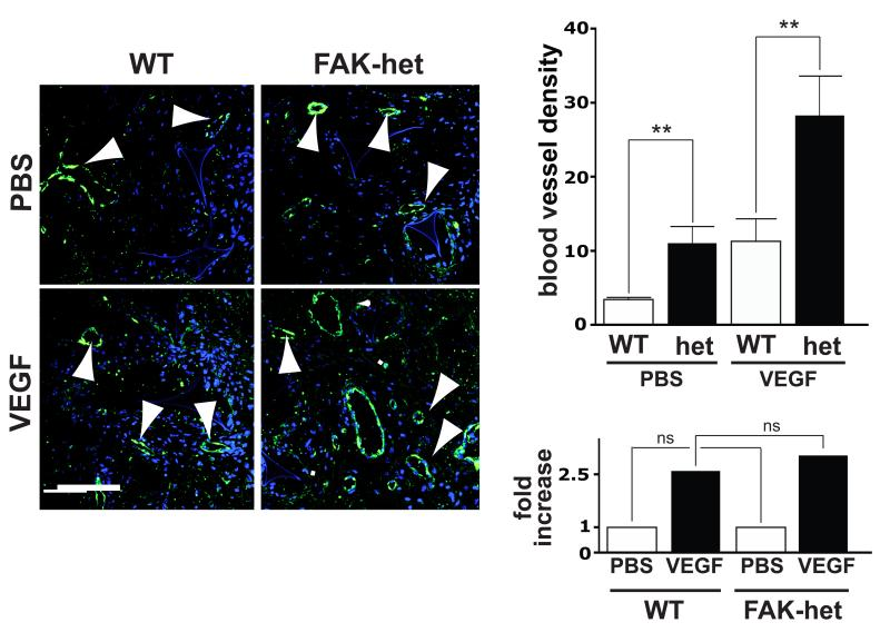Tumour-free angiogenesis is enhanced in FAK-heterozygous mice Sponges implanted into the flanks of either FAK-het mice or WT controls were injected with VEGF or PBS every two days for two weeks. At two weeks post implantation, in vivo angiogenesis was assessed by counting the numbers of blood vessels per mm 2 in sponge sections from WT and FAK-het mice. VEGF-treatment enhanced angiogenesis in both WT and FAK-het mice. However, quantitation showed that angiogenesis is elevated both at the baseline level, PBS-treated, (PBS) and after VEGF-stimulation (VEGF) in FAK-het mice. Upper bar chart represents mean numbers of blood vessels/ mm 2 of sponge section + s.e.m. Lower bar chart shows that the relative fold-increase in microvessel density of FAK-het mice over WT controls was similar for both PBS and VEGF-treated sponges. Arrowheads indicate blood vessels. DAPI-stained nuclei, blue, n=7 WT and n=10 FAK-het mice, Student's t-test, ns, not statistically significant different, ** P