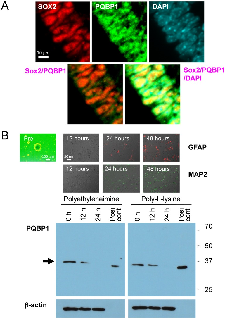 PQBP1 is expressed in neural stem progenitor cells (NSPC). (A) Confocal microscopic analysis of VZ at E15 confirmed the colocalization of PQBP1 and Sox2 in the nuclei of NSPCs. Confocal microscopy (LSM510META, Carl Zeiss AG) with 40X water emersion lens was used to visualize the fluorescence. (B) NSPCs from E15 mouse were differentiated by plating them on dishes coated with polyethyleneimine or poly-L-lysine. The upper panels show the chronological expression of the differentiation markers. The lower panels show the downregulation of PQBP1 protein levels by the differentiation of NSPCs. The positive control is Drosophila Schneider cells that express PQBP1 and that do not show a band that is reactive to anti mammal beta-actin antibody. Digital images were captured by an Olympus IX71 microscope.
