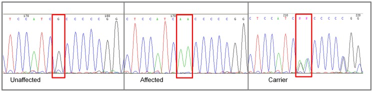"Chromatograms of NKX2-8 exon 2 sequence where a mutation of G to AA was found in an affected Weimaraner. From left to right: Unaffected Weimaraners have a genotype of ""GG""; affected Weimaraners have a genotype of ""AA""; carrier Weimaraners have a genotype of ""AG""."