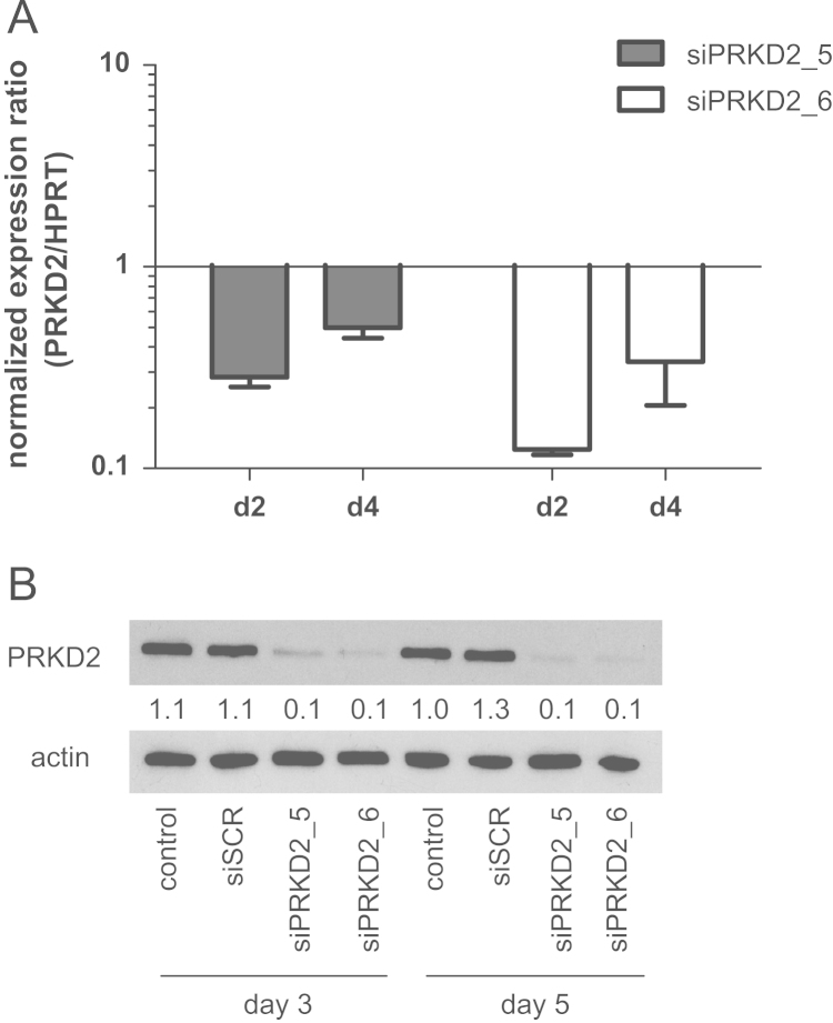 Efficacy of PRKD2 silencing. Knockdown of PRKD2 expression in U87MG cells was performed by RNA interference using two different siRNA constructs (Oligofectamine was used to transfect 20 nM siRNA). Silencing efficacy was analyzed by (A) qPCR two and four days post transfection and (B) Western blotting three and five days post transfection. Results in (A) represent mean±SD of three different experiments. Results in (B) show one representative Western blot out of five independent experiments. Numbers represent relative optical densities of PRKD2 protein normalized to loading controls.