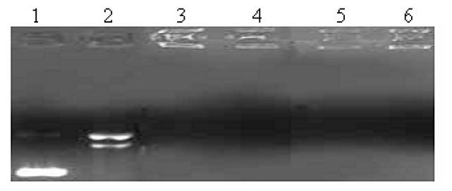 Effect of different ligands and complexes on the interaction with pUC19 DNA (7 μg/ml) with the existence of DNaseI in a Tris-HCl buffer (100 mM, pH 7.4) at 37 ºC for 0.5 h. Agarose gel electrophoresis diagram: lane 1, DNA control ; lane 2 DNA+ DNaseI; lane 3 DNA+ DNaseI + 6a ; lane 4 DNA + DNaseI + 6b ; lane 5 DNA + DNaseI +1a ; lane 6 DNA+ DNaseI + 1b .