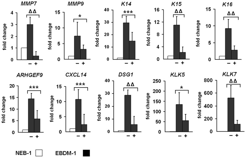 Reduced expression of target genes upon IL-1β depletion. NEB-1 cells and EBDM-1 cells were incubated with 2 µg/ml IL-1β neutralizing antibody for 24 h to deplete IL-1β in the culture medium. Expression of untreated EBDM-1 cells (−) was compared to treated EBDM-1 cells (+) by SQRT-PCR. We picked at least one representative target gene of each of the six functional groups identified in the microarray. All investigated targets showed significant downregulation after IL-1β depletion. No differences in geneexpression were observed in NEB-1 cells −/+ antibody incubation (n = 3). Student's t -test was performed with p values: * ≤0.05, *** ≤0.005, ΔΔ ≤0.0005.
