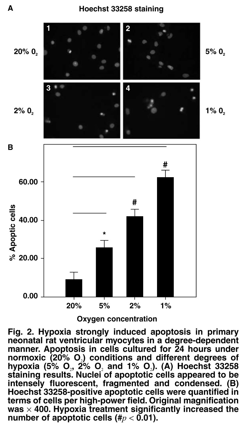 Hypoxia strongly induced apoptosis in primary neonatal rat ventricular myocytes in a degree-dependent manner. Apoptosis in cells cultured for 24 hours under normoxic (20% O 2 ) conditions and different degrees of hypoxia (5% O 2 , 2% O 2  and 1% O 2 ). (A) Hoechst 33258 staining results. Nuclei of apoptotic cells appeared to be intensely fluorescent, fragmented and condensed. (B) Hoechst 33258-positive apoptotic cells were quantified in terms of cells per high-power field. Original magnification was × 400. Hypoxia treatment significantly increased the number of apoptotic cells (# p