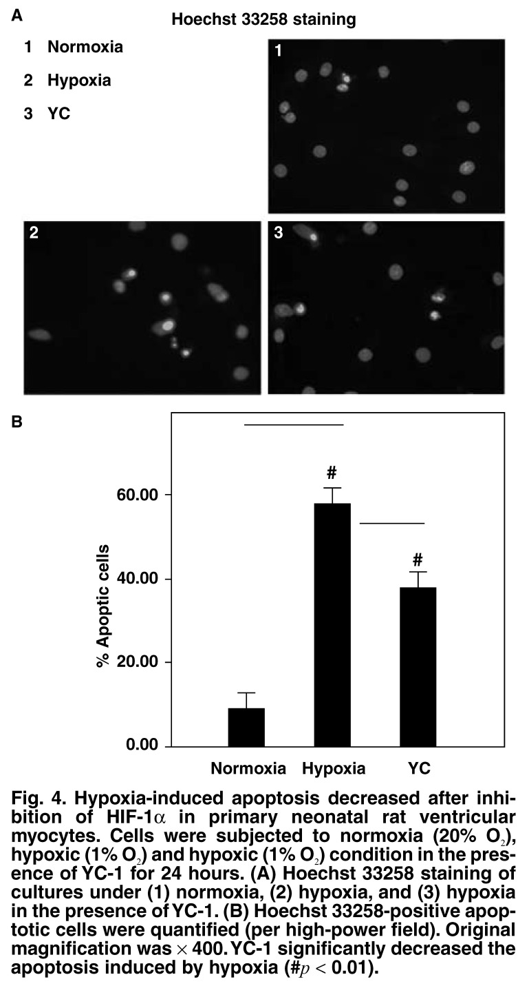 Hypoxia-induced apoptosis decreased after inhibition of HIF-1α in primary neonatal rat ventricular myocytes. Cells were subjected to normoxia (20% O 2 ), hypoxic (1% O 2 ) and hypoxic (1% O 2 ) condition in the presence of YC-1 for 24 hours. (A) Hoechst 33258 staining of cultures under (1) normoxia, (2) hypoxia, and (3) hypoxia in the presence of YC-1. (B) Hoechst 33258-positive apoptotic cells were quantified (per high-power field). Original magnification was × 400. YC-1 significantly decreased the apoptosis induced by hypoxia (# p