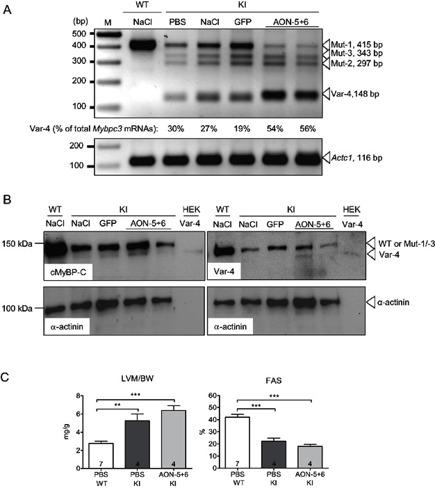 Impact of AAV9-U7-AONs on molecular and functional phenotype in 4-week-old mice KI mice received NaCl, PBS, adeno-associated virus serotype 9 (AAV9) encoding GFP (GFP, 7.6 × 10 10 vg) or encoding U7-AON-5+6 (9.4 × 10 11 vg) by systemic administration into the tail vein. Analyses of ventricular tissue were performed 4 weeks post-injection. RT-PCR analysis using primers located in exons 4 and 9 of Mybpc3 and α-cardiac muscle actin ( Actc1 ). The level of mutant Mybpc3 mRNAs was quantified using the Gene Tool Software (Syngene, Cambridge) and the level of Var-4 mRNA was expressed as percentage of total Mybpc3 mRNAs, and indicated in the figure. Western blot stained with antibodies directed against the N-terminus of cMyBP-C (cMyBP-C), the amino acids produced by the fusion of exon 4 with exon 7 (Var-4) or against α-actinin. The Var-4-cMyBP-C antibody also detects WT, Mut-1 and/or Mut-3 cMyBP-C proteins. As positive controls, protein extracts from either ventricular tissue of a wild-type mouse injected with PBS (WT-NaCl) or from HEK293 cells transfected with a plasmid encoding Var-4 were used (HEK-Var-4). The expected fragments are indicated by arrowheads. Echocardiographic analyses were performed 4 weeks after administration of AAV9 or PBS in KI and/or WT mice. Fractional area shortening (FAS), left ventricular mass-to-body-weight (LVM/BW) ratio are shown. Data are expressed as mean ± SEM. ** p