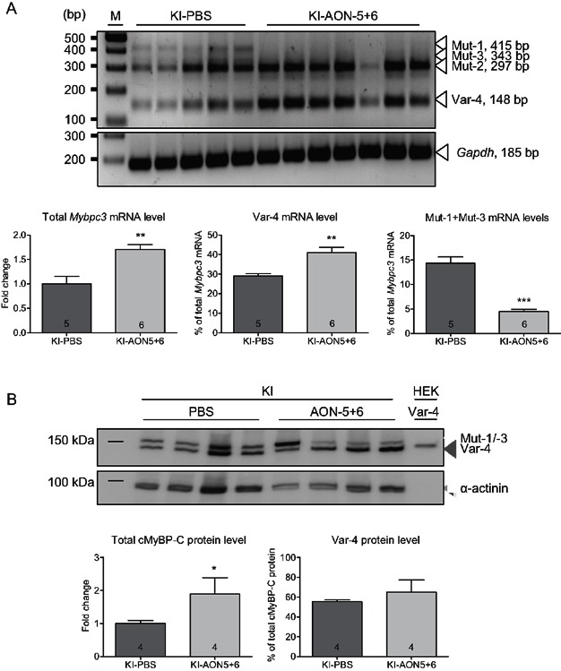 Evaluation of exon skipping efficacy 7 days after AAV9-U7-AON-5+6 administration in newborn mice 1-day-old KI mice received PBS or adeno-associated virus serotype 9 (AAV9) encoding U7-AON-5+6 (2 × 10 11 vg) by systemic administration into the temporal vein for 7 days. RT-PCR using primers located in exons 4 and 9 of Mybpc3 or in Gapdh . Determination of the mRNA levels was performed by densitometry (Gene Tool Sofware; Syngene, Cambridge). Total Mybpc3 mRNA level was normalized to Gapdh mRNA level and related to KI-PBS. Var-4 and Mut-1 mRNA levels were expressed as percentage of total Mybpc3 mRNA. Western blot stained with antibodies directed against the MyBP-C motif of cMyBP-C or α-actinin. Total cMyBP-C level was normalized to α-actinin and related to KI-PBS, and Var-4 protein level was expressed as a percentage of total cMyBP-C protein level. Var-4 positive control corresponds to protein extract from HEK293 cells transfected with Var-4 cDNA. Data are expressed as mean ± SEM. * p