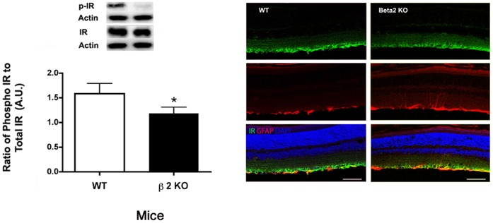 Insulin Receptor Levels and localization. Left Panel: Western blot results for phosphorylated insulin receptor (Tyr 1150/1151) in β2-adrenergic receptor knockout mice vs. wildtype. Western blot data were normalized to beta actin. N = 5 mice in each group. *P