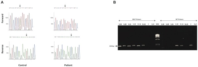 Analysis of RYR1 at the DNA level in patients and controls. ( A ) Sequence of the RYR1 gene revealed a homozygous A to G nucleotide substitution leading to an amino acid change (p.Y3016C) within exon 60 in patient (arrow). ( B ) Analysis of the mutation in family members and control. Left panel: PCR amplification products of RYR1 from exon -60 to intron-60 using primers specific to the mutated allele (MUT Primers, product size = 210 bp). Right panel: PCR amplification products of RYR1 from exon-60 to intron – 60 using primers specific to wild type allele (WT Primers, product size = 210 bp). This test confirms the cosegregation of the RYR1 mutation with the phenotype and haplotypes in the family. C: control. Affected individuals are underlined.