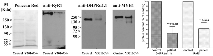 Effect of the pY3016C mutation on <t>RyR1</t> protein expression on patient and control muscle biopsies. The western blot shows a dramatic decrease of the RyR1 protein and of the DHPRalpha 1.1 expression in the patient's biopsy compared to control's biopsy (P