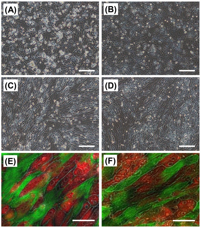 Cell morphologies of HepaRG cells and TIG-118/HepaRG cells on TRCD. Phase-contrast (A–D) and fluorescent (E, F) micrographs of the HepaRG cells (A, B) and TIG-118/HepaRG cells (C–F) on a TRCD. After one day (A, C, E) and three days (B, D, F) of culturing HepaRG cells. Green (CellTracker Green CMFDA): TIG-118 cells, Red (CellTracker Orange CMRA): HepaRG cells. The bars represent 200 µm (A–D) and 50 µm (E, F).