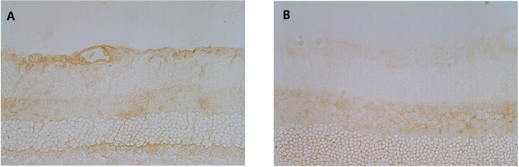 Expression of sirtuin 1 in retinal ganglion cells three days after optic nerve transection in eyes treated with resveratrol injection ( A ) and in eyes treated with co-injections of <t>sirtinol</t> and resveratrol ( B ). The expression of sirtuin 1 (SIRT1) in retinal ganglion cells (RGCs) decreased in eyes treated with co-injections of sirtinol and resveratrol.