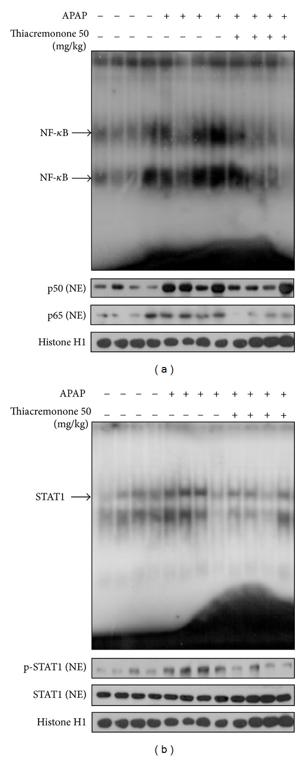 Reduction of NF- κ B and STAT1 in the liver of thiacremonone pretreated mice. (a) The expression of p50 and p65 phosphorylation in nuclear extracts (NE) was determined by Western blotting, and the DNA binding activity of NF- κ B was determined in the nuclear extracts of APAP-treated mice and thiacremonone pretreated mice liver tissues by EMSA. (b) The expression of p-STAT1 and STAT1 in NE was determined by Western blotting and the DNA binding activity of STAT1 was determined in the nuclear extracts of APAP-treated mice and thiacremonone pretreated mice liver tissues by EMSA.