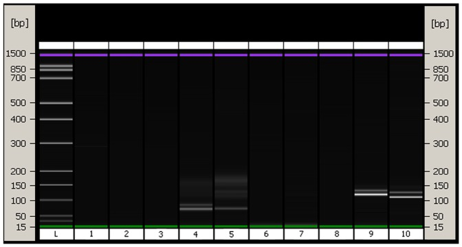Amplification results using the proposed DNA extraction method (on-chip- electrophoresis results). The size of PCR products are 79–115 bp ( CSRM60 ), 100–124 bp ( INRA035 ). Left to right: L, ladder; 1, sample washing water control ( CSRM60 ); 2, extraction solution (without hair shaft) control ( CSRM60 ); 3, ddH 2 O control ( CSRM60 ); 4, DNA from hair shafts of pure bred Luxi cattle ( CSRM60 ); 5, DNA from liver of beef cattle ( CSRM60 ); 6, sample washing water control ( INRA035 ); 7, extraction solution (without hair shaft) control ( INRA035 ); 8, ddH 2 O control ( INRA035 ); 9, DNA from hair shafts of pure bred Luxi cattle ( INRA035 ); 10, DNA from liver of beef cattle ( INRA035 ).