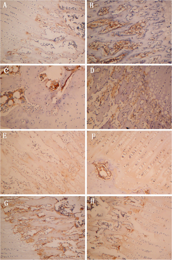 RANKL and OPG expression in articular cartilage and subchondral bone. Histological sections were submitted for immunohistochemical analyses. RANKL staining is shown in each group in Figure 4 (A-D) : (A) Normal group. RANKL immunolabeling was rarely detected. (B) AIA group. RANKL immunolabeling was detected at high levels, especially in subchondral bone. (C) TGP group. TGP decreased RANKL expression. (D) IND group. OPG staining for each group is shown in Figure 4 (E-H) : (E) Normal group. OPG was expressed only in deep zone. (F) AIA group (G) TGP group. OPG was highly expressed in subchondral bone. (H) IND group (original magnification × 400).