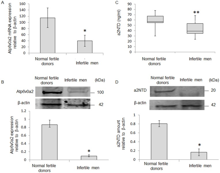 Atp6v0a2 is lower in spermatozoa of infertile men. (A) Atp6v0a2 mRNA expression in spermatozoa was measured by Real-time PCR and gene expression was normalized to β-actin mRNA. Atp6v0a2 mRNA expression in spermatozoa of normal fertile donors was significantly higher than infertile men (P