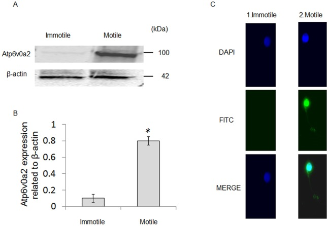 Atp6v0a2 is lower in immotile spermatozoa. (A) Western blot analysis shows the levels of Atp6v0a2 in human motile and immotile spermatozoa. (B) The bar diagram shows the quantification of Atp6v0a2 protein expression, as determined by densitometry analysis and normalized to β-actin. Immotile spermatozoa had significantly lower Atp6v0a2 expression than motile spermatozoa (P