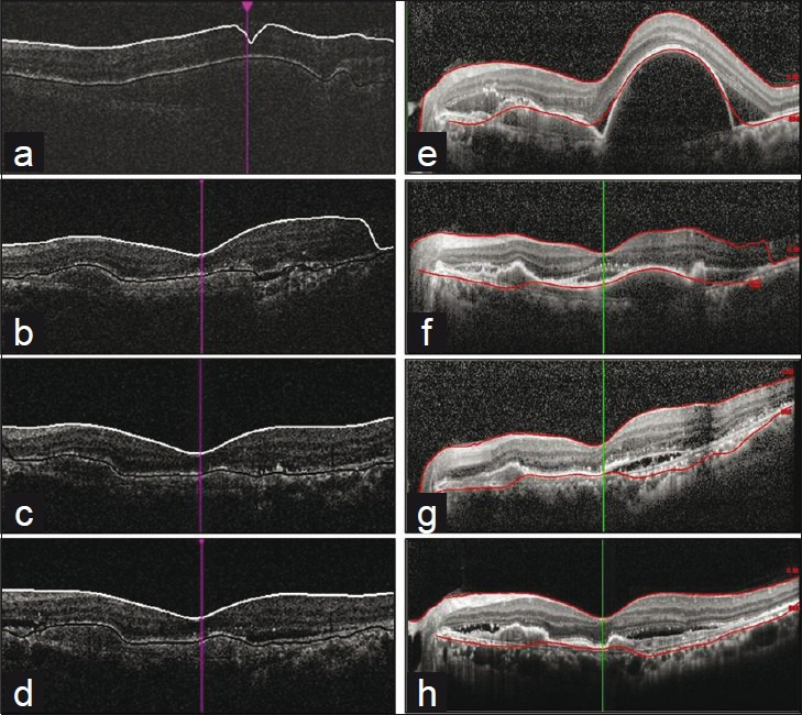 Changes in the segmentation error following intravitreal anti- VEGF injections in the same patient. In both devices, segmentation error decreased as the macular lesion improved. (a–d), Cirrus HD-OCT. (a), Baseline. (b), 1 month. (c), 2 months. (d), 6 months. (e–h), Spectralis HRA + OCT. (e), Baseline. (f), 1 month. (g), 2 months. (h), 6 months