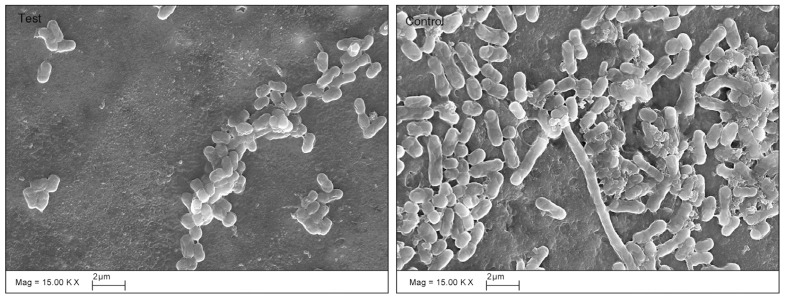 SEM images of biofilm (×15,000). Small clusters of bacterial cells were observed as isolated groups on the dentine surface treated with chlorhexidine, whereas a mono-layer of sparse biofilm was observed in the control group.
