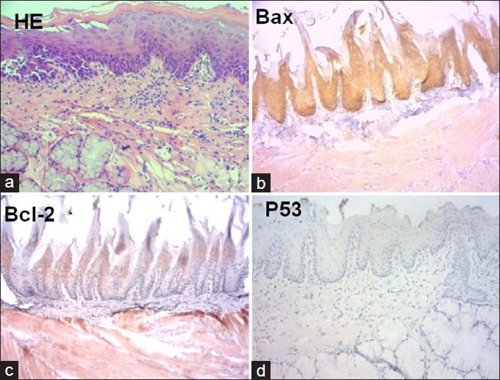 Photomicrographies showing the experimental group of rat tongue carcinogenesis after 4 weeks-treatment (a) hematoxylin-eosin stain; (b) immunohistochemistry for <t>bax</t> (c) immunohistochemistry for <t>bcl-2;</t> (d) immunohistochemistry for p53 (hematoxylin and eosin stain; 100× magnification)
