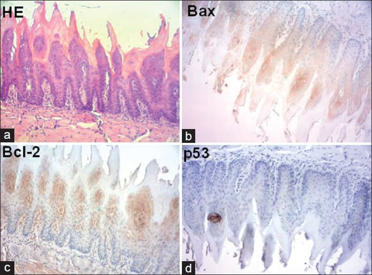 Photomicrographies showing the control group of rat tongue carcinogenesis after 12 weeks-treatment (a) hematoxylin-eosin stain; (b) immunohistochemistry for bax (c) immunohistochemistry for bcl-2; (d) immunohistochemistry for p53 (hematoxylin and eosin stain; 100× magnification)