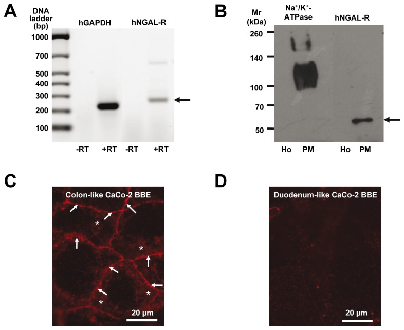 Expression of hNGAL-R in Caco-2 BBE cells. RT-PCR for hNGAL-R and GAPDH in colon-like Caco-2 BBE cells ( A ). A PCR product of 296 bp is amplified from colon-like Caco-2 BBE cell cDNA using specific primers for human NGAL-R and reverse transcriptase (+RT), but not in the control reaction without reverse transcriptase (-RT). The housekeeping gene human GAPDH is used as a control. A 326 bp PCR product is only amplified in the presence of reverse transcriptase (+RT). Immunoblotting of colon-like Caco-2 BBE cell homogenate (Ho) and plasma membranes (PM) ( B ). Specific signals are detected in PM of colon-like Caco-2 BBE cells with antibodies against hNGAL-R (α-CT-24p3-R; 1:500) and the α1-subunit of Na + ,K + -ATPase (1:500). Live immunofluorescence staining of non-permeabilized colon- and duodenum-like Caco-2 BBE cells ( C and D ). Immunofluorescence staining with α-NT-24p3-R (1:100) reveals hNGAL-R expression (red fluorescence) at apical (asterisks) and lateral plasma membranes (arrows) of colon-like Caco-2 BBE cells ( C ). No staining for hNGAL-R is detected in duodenum-like Caco-2 BBE cells ( D ).