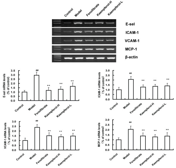 Results of gene expression by Semi-quantitative RT-PCR. Representative gel images of E-sel, ICAM-1, <t>VCAM-1</t> and MCP- 1 mRNA expression of the second portion of rabbit aortas. β-actin was used as an internal control and PCR products were visualized by ethidium bromide staining. The data in the bar graph are quantified ratios of the signal for E-sel, ICAM-1, VCAM-1 and MCP-1 to that for β-actin with the control samples set at 100%. Results are expressed as mean± SD (n = 6). ** p