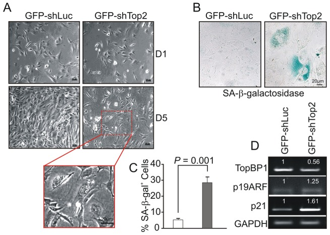 AAD mutation induces premature cellular senescence. ( A ) GFP+ TopBP1 ki/+ cells were sorted 24 hr after transfection and cultured. Images show the cell density and morphology at D1 and D5. Enlargement shows a representative area of TopBP1 ki/− cells from D5. ( B ) SA- β - galactosidase staining of cells 6 days after shRNA transfection shown in blue. ( C ) Quantification of SA-β- galactosidase positive cells from B. The data represent the mean ± SD of at least 500 cells from 2 independent experiments. P value: Student's t -test. ( D ) Semi-quantitative RT-PCR analysis of RNA isolated from D5 cultures from A. The expression level (indicated on top of each sample) was estimated by quantification normalized to the level of GAPDH and then correlated with GFP-shLuc transfected cells. Two independent experiments were performed which showed equivalent results.