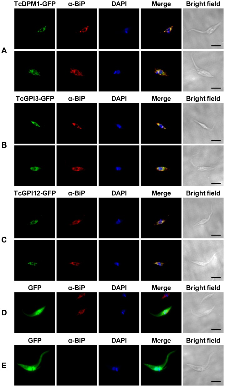 Cellular localization of T. cruzi enzymes of the GPI biosynthetic pathway. Epimastigotes were transiently transfected with the plasmids pTREX-TcDPM1-GFP ( A ), pTREX-TcGPI3-GFP ( B ), pTREX-TcGPI12-GFP ( C ) or pTREXnGFP as a control plasmid ( D ) and ( E ). Transfected parasites were fixed with 4% paraformaldehyde, incubated with the ER marker anti-BiP (1∶1000) and the secondary antibody conjugated to Alexa 555 (1∶1000). Cells were also stained with DAPI showing the nuclear and kinetoplast DNA. In panel E , parasites that were not incubated with the primary, anti-BiP antibody are shown as negative controls. Images were captured with the Nikon Eclipse Ti fluorescence microscope. Scale bars: 5 µm.