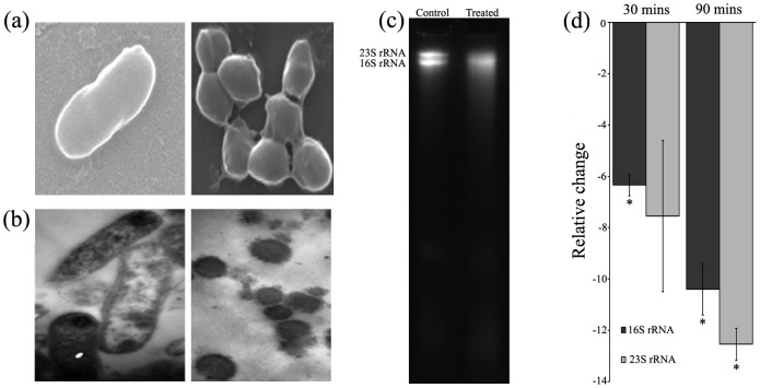 Morphological transition and rRNA degradation. H. pylori incubated without or with ZnO-PEI NP for 3 h was visualized by (a) SEM and (b) TEM. (c) RNA was extracted from ZnO-PEI NP treated and untreated H. pylori and electrophoresed on 7M urea-6% polyacrylamide gel. In (a), (b) and (c) the left panel shows the control and the right panel shows treated cells. (d) 16S and 23S rRNA was estimated in the RNA samples by <t>qRT-PCR</t> (list of primers are provided in Table S2 ). * P