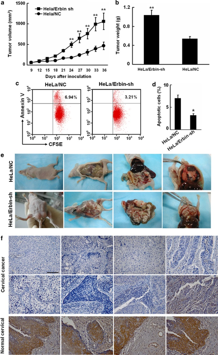 Knockdown of Erbin promotes proliferation and metastasis of cervical cancer cells in nude mice. ( a , b ) In all, 5 × 10 6 <t>HeLa/NC</t> and HeLa/Erbin-sh cells were subcutaneously injected into the right flanks of six-to-seven-week old female Balb/C athymic nude mice. The mice were monitored daily, and tumor volumes estimated according to the formula volume=length × width 2 /2. At the end of the experiments, the mice were killed. The primary tumors were dissected and weighted. ( c , d ) HeLa/NC and HeLa/Erbin-sh cells were labeled with <t>CFSE</t> and then implanted into the peritoneal cavity of nude mice. At 72 h after implantation, the apoptotic rates of the tumor cells from peritoneal cavity were determined by FACS analysis of CFSE and Annexin V-phycoerythrin double-positive cells. ( e ) In all, 5 × 10 6 HeLa/NC and HeLa/Erbin-sh cells were implanted into the peritoneal cavity of nude mice. After implantation for 56 days, the peritoneal cavities were dissected and photographed. ( f ) The expression of Erbin in human cervical cancer tissues was analyzed by immunohistochemistry with the antibody against Erbin using a tissue microarray containing cervical cancer and normal cervical tissues.