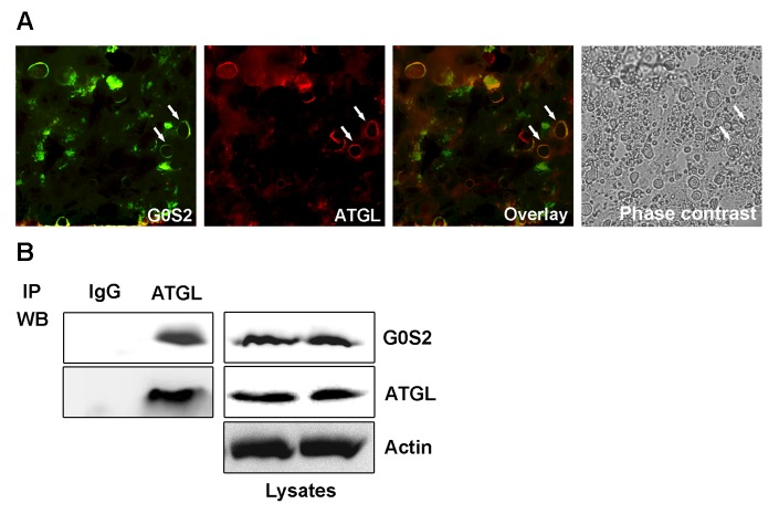 G0S2 binds to ATGL in the liver. Mice were injected via the tail vein with an Ad-G0S2 vector and killed 4 days later. (A) Immunofluorescent analysis of liver sections with the anti-G0S2 and anti-ATGL antibodies. Bound primary antibodies were visualized, respectively, with FITC-conjugated anti-rabbit IgG or TRITC-conjugated anti-mouse IgG. The sections were visualized under laser confocal microscopy. LDs in the livers were visualized under a phase-contrast microscope. The arrows indicate positive staining. Scale bar = 10 µm. (B) Anti-G0S2 and anti-ATGL western blot (WB) analyses were performed on ATGL or mouse monoclonal IgG immunoprecipitates (IP) prepared with the anti-ATGL antibody or IgG affinity <t>Dynabeads</t> (left panel). To control for equal loading, equal amounts by volume of crude extract for the <t>immunoprecipitation</t> experiments were loaded onto the SDS-PAGE gel for immunoblotting (right panel).