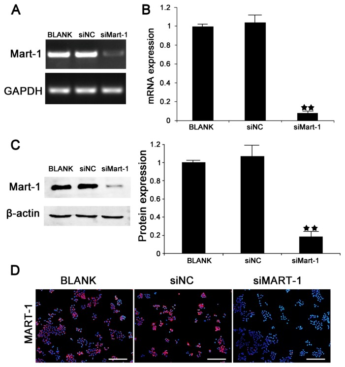 Targeted silencing of MART-1 gene expression by small interfering RNA. ( A ) Results of RT-PCR detection of MART-1 expression in SP6.5 cells transfected with BLANK, siNC, or siMart-1 for 24 h; ( B ) Quantitative real-time PCR analysis of MART-1 gene transcripts in SP6.5 cells. The experiment was performed after 24 h of siMart-1 (100 nmol/L) transfection. GAPDH was used as the internal control. ★★ p