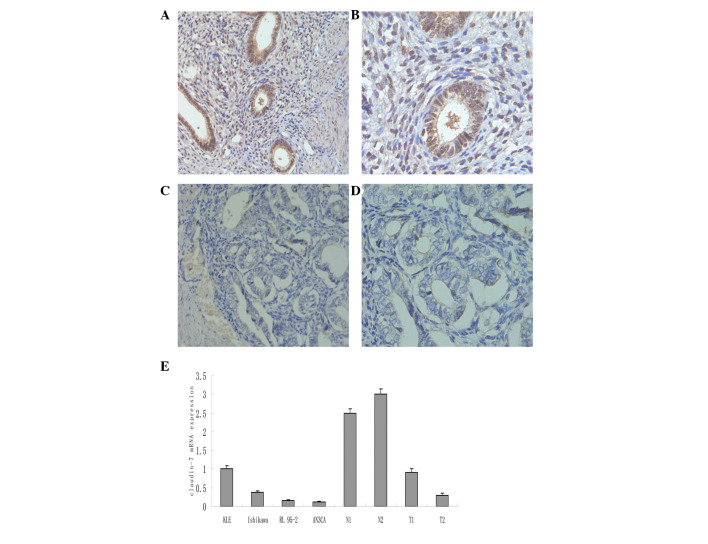 Immunohistochemical staining of claudin-7 expression in (A and B) normal endometrium and (C and D) cancer tissues. Original magnification, (A and C) ×200 and (B and D) ×400; staining, DAB. (E) Claudin-7 mRNA expression in endometrial cancer cell lines, as detected by real-time reverse trancription-polymerase chain reaction analysis. N, normal tissues; T, tumor tissues; DAB, <t>3,3′-diaminobenzidine.</t>