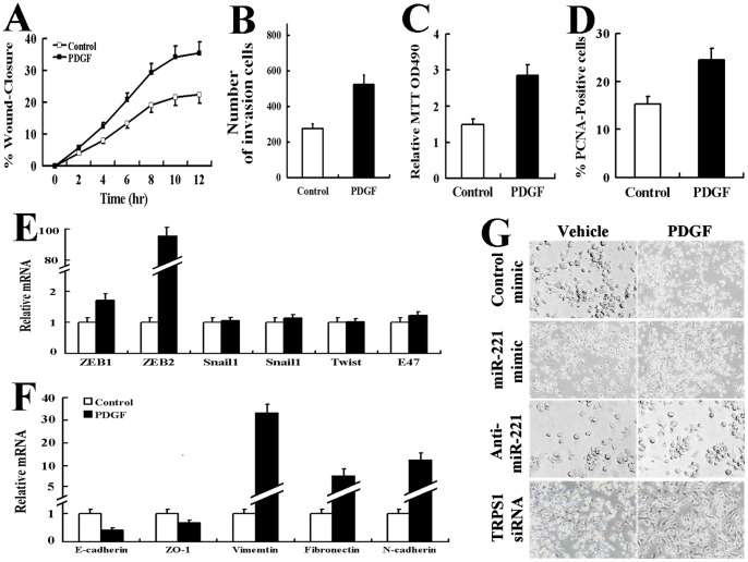 PDGF promoted cell migration and proliferation and altered the EMT phenotype in AsPC-1 cells. AsPC-1 cells incubated with vehicle or PDGF-BB (20 ng/ml) were subjected to the scratch wound assay (A) and Matrigel transmembrane invasion assay (B). The results are the mean±SD. of triplicate measurements of three independent experiments. AsPC-1 cells incubated with vehicle or PDGF-BB (20 ng/ml) for 24 h were subjected to the MTT cell proliferation assay (The results are indicated as the absorbance readings at 490 nm) (C) or stained with a FITC-conjugated antibody against the proliferation marker PCNA and DAPI (150 cells were counted per condition, and the percentage of PCNA-positive cells is presented.) (D). The results are the mean±SD. for triplicate assays of three independent experiments. Real time-PCR was used to determine the mRNA levels to evaluate the upregulated expression of transcription factors (E) and EMT-specific genes (F) in AsPC-1 cells incubated with vehicle or PDGF-BB (20 ng/ml, 24 hr). The relative mRNA levels were normalized to GAPDH. All of the treatments in this figure were carried out in triplicate, and the results are displayed as the means ± SD. G: Photomicrographs of AsPC-1 cells incubated with vehicle or PDGF-BB (20 ng/ml, 24 hr). Original magnification, 200X.
