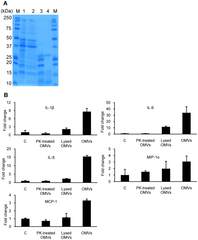 The pro-inflammatory response of HEp-2 cells to A. baumannii OMVs treated with proteinase K and EDTA. (A) Protein profiles of A. baumannii OMVs. Lane M, size marker; 1, purified intact OMVs; 2, OMVs treated with EDTA; 3, OMVs treated with proteinase K; 4, proteinase K. (B) Expression of pro-inflammatory cytokine genes to proteinase K- and EDTA-treated A. baumannii OMVs was assessed by quantitative real-time PCR. HEp-2 cells were treated with the same concentration (15 µg/ml) of A. baumannii OMVs for 24 h as a positive control. Data are presented as mean ± SD of duplicate determinations.