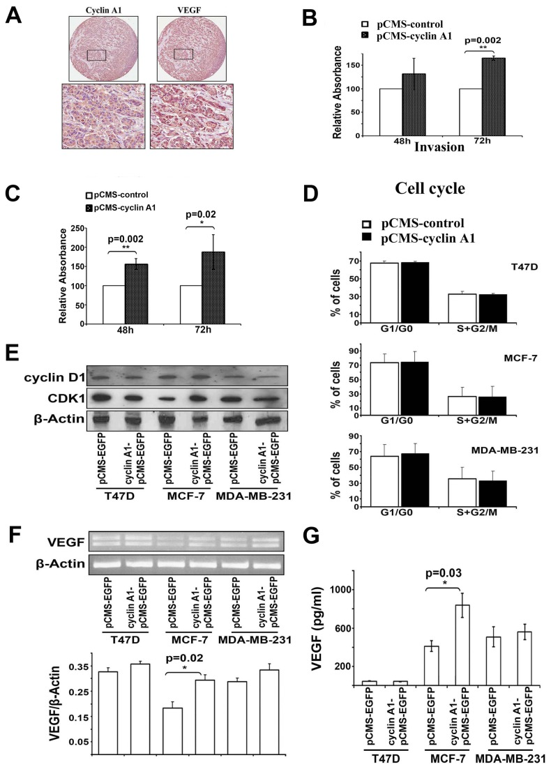 Effect of cyclin A1 expression on tumor invasion is associated with its effect on VEGF expression in MCF-7 cells. (A) Evaluation of cyclin A1 and VEGF expression in metastatic lesions from lymph nodes from patients with breast cancer metastasis using immunohistochemical analysis. Representative pictures show the cancer cells are strongly positive to cyclin A1 and VEGF expression. Upper panels represent cores at 20x magnificantion and lower panels represent the higher magnification (40x) of the selected areas. (B) MCF-7 cells that were transfected with cyclin A1pCMS-EGFP or pCMS-EGFP vectors were applied on the Matrigel-coated invasion chamber and were assessed after 48 or 72 hours. Data in graphs are the mean ± SD represents two independent experiments, each performed in duplicates. P value is indicated. (C) MDA-MB-231 cells transfected with cyclin A1pCMS-EGFP or pCMS-EGFP were applied on the Matrigel-coated invasion chamber and were analyzed after 48 or 72 hours. Data in graphs are the mean of two independent experiments, each performed in duplicate, p=0.002 for 48 h and p=0.02 for 72 h. (D) Cell cycle distribution of the cells that were transfected with cyclin A1pCMS-EGFP or pCMS-EGFP. Data in graphs are the mean ± SD represents three independent experiments from flow cytometry analysis. The percentage of cells at onset of each cell cycle phase is indicated. (E) Western blot analysis shows the levels of cyclin D1 and CDK1 protein expression in the cells that were transfected with cyclin A1pCMS-EGFP or pCMS-EGFP. (F) Representative picture shows the VEGF mRNA expression in the cells transfected with cyclin A1pCMS-EGFP or pCMS-EGFP (upper panel). Quantification of VEGF mRNA level in the samples is indicated. P value is shown (lower panel). (G) ELISA assay of VEGF secretion in the cells transfected with cyclin A1pCMS-EGFP or pCMS-EGFP. Mean ± SD represents three independent experiments (lower panel). Breast cancer cell lines used for these studies are T47D, MCF-7 and MDA-MB231 as indicated.