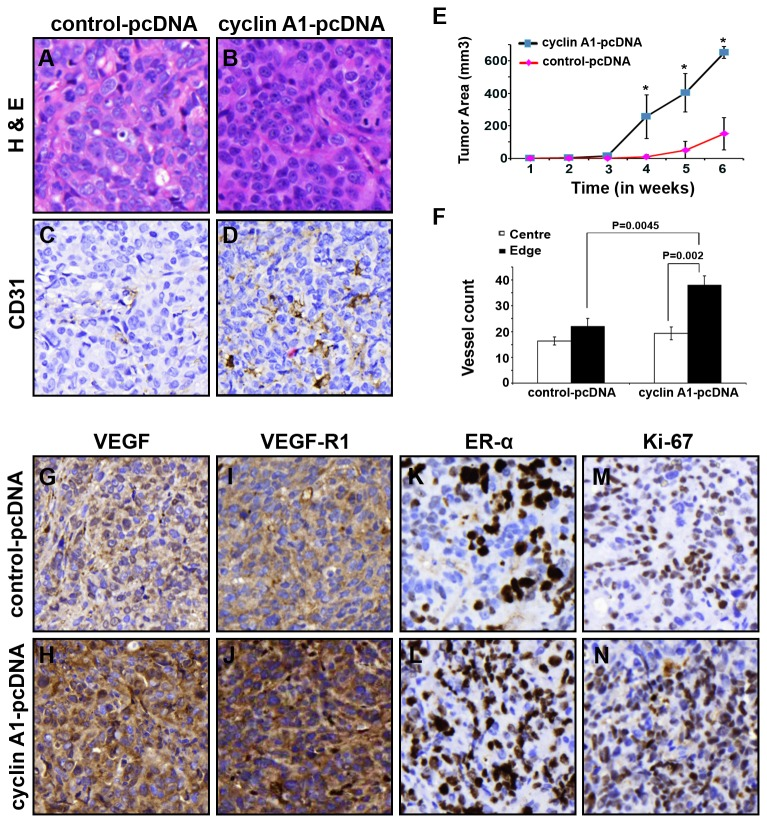 "Long-term effect of elevated level of cyclin A1 on growth and angiogenesis phenotype of xenograft tumors in mice. MCF-7 cells stable expressing pcDNA–cyclin A1 or pcDNA vectors were subcutaneous implanted into female nude mice with E2 supplementation. (A, B) Representative microphotographs of xenograft tumor sections stained with Haematoxylin and Eosin are shown. (C, D) Representative pictures show the xenograft tumors stained with antibody against human CD31, the CD31 positive vessels are indicated. The control tumor ""control-pcDNA"" and cyclin A1 expressing tumors ""cyclin A1-pcDNA"" are indicated. (E) Growth curves of the two groups of xenograft tumors are indicated. The time is indicated in x-axis and tumor volume in mm 3 is indicated in y-axis. (F) Quantification of the tumor vascularizations in cyclin A1 expressing xenograft tumors ""cyclin A1-pcDNA"" and in control xenograft tumors ""control-pcDNA"". The numbers of CD31-positive blood vessels in the central vs. edge regions of the tumor areas are shown. P values are indicated. Mean ± SD represents three independent experiments. (G–N) Xenograft tumors from ""cyclin A1-pcDNA"" and ""control-pcDNA"" groups were immunostained with antibodies against VEGF, VEGFR1, ER-α and Ki67. The representative microphotographs are shown."