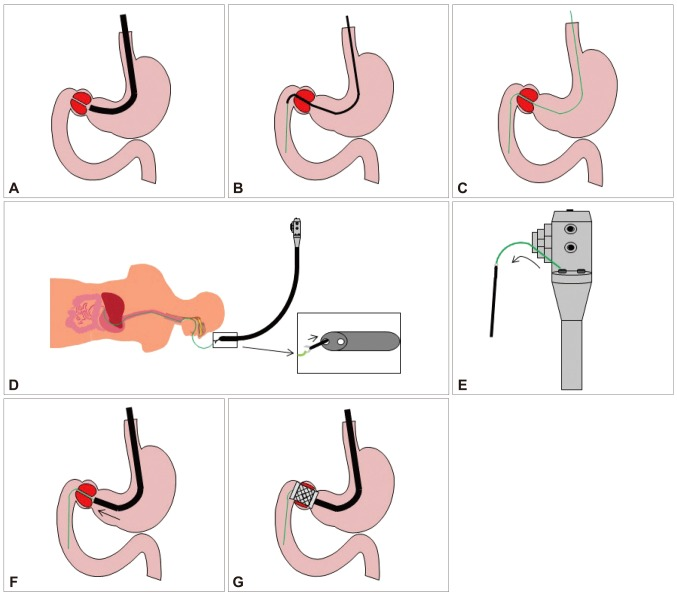 Schema of the ultrathin endoscope-assisted method. (A) The stenotic lesion was approached with a conventional scope. (B) When guide wire insertion failed with the conventional scope, the ultrathin endoscope passed through the stenotic lesion and the guide wire was inserted into the forceps channel. (C) The guide wire was placed in the stenotic lesion and the ultrathin endoscope was retrieved completely. (D) The tip of the guide wire was grabbed with an alligator forceps which was already inserted into the large bore channel of the two channel endoscope. (E) The guide wire was retrieved through the large bore channel of the two channel endoscope. (F) The two channel endoscope was inserted into the patient and approached to the stenotic lesion. (G) The self-expandable metallic stent was inserted and expanded in the stenotic lesion.