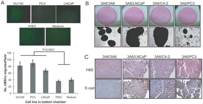 Interactions of <t>human</t> bone marrow-derived MSCs and <t>prostate</t> cancer <t>cells.</t> (A) Migratory response of human MSCs to the medium, <t>normal</t> prostatic <t>epithelial</t> cells (PrEC) and prostate cancer cell lines (DU145, PC3 and LNCaP). Migrated cells through the membrane of transwells were stained with crystal violet 8 h after cell plating. The lower surface of the membrane was photographed (100x), and a representative image from each condition is shown at top. Quantitative data are represented as the means ± SD of the number of cells per high-power field (100x) in triplicate experiments. (B) Macroscopic (upper) and microscopic (bottom) view of cellular aggregates under 3-D RWV culture conditions of 3A6 cells alone (3A6/3A6) or mixed with LNCaP (3A6/LNCaP), C4-2 (3A6/C4-2) or PC3 (3A6/PC3) cells. (C) Detection of mixed cellular components in the 3-D cultured prostate tumoroids by H E and immunohistochemical staining of E-cadherin (E-Cad) in the cell aggregate sections.